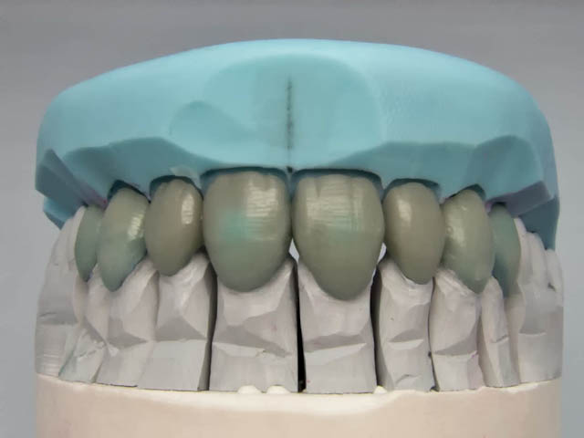 emax reconstruction waxup with index