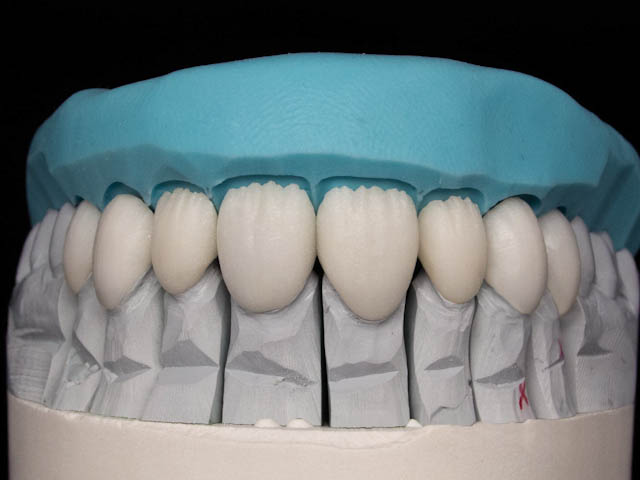 emax reconstruction with cutback and inex