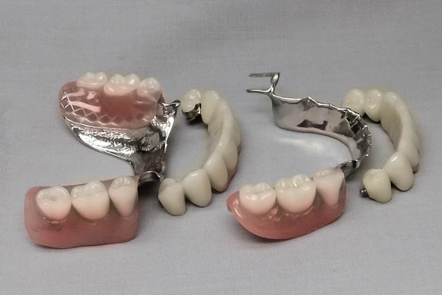 pfm and partial tissue precision attachment and cast clasp all