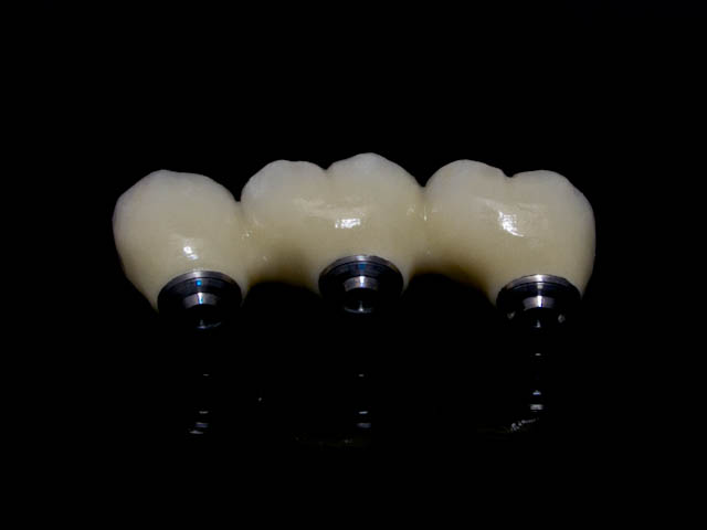 screw retained implant bridge pfm
